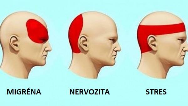 Výzkumy prokázaly, že tento trik proti bolesti hlavy je účinnější než léky a přinese úlevu v průběhu 5 minut...