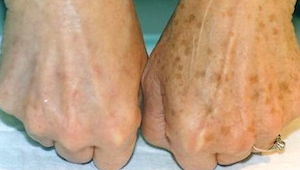 Máme pro vás účinný způsob, jak se zbavit skvrn na kůži! Super!