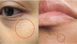 4 typy kožních změn, na které je lepší nesahat! Důležité!