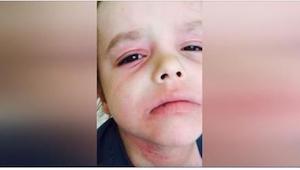 Ztratila naději a rozhodla se natočit svého plačícího synka, který křičel bolest