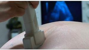 Lékař informuje vyděšeného muže o výsledku operace. Pak mu muž do rukou vloží zm
