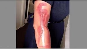 Pokud nechcete utrpět nepříjemná zranění, neudělejte stejnou chybu, jako tato že