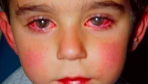VAROVÁNÍ: Tento chlapec ztratil 75% zraku kvůli hračce, kterou máte doma i vy!