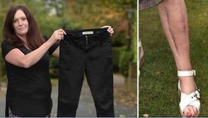Ztratila vědomí, když byla na večírku. Když lékaři uviděli její kalhoty, okamžit