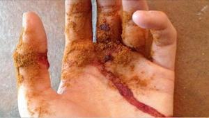 Uhodnete, čím posypala dlaň, aby zastavila krvácení? Skvělé!