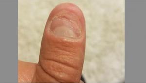 Psychiatr provedl experiment, ze kterého je jasné, proč si okusujeme nehty.