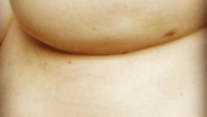 Nenápadná fotografie prsu skrývá symptom rakoviny. Vidíte ho?