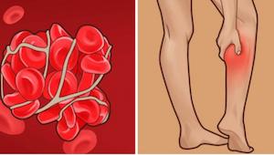 Trombóza - tichý zabiják. Přečtěte si, jak včas odhalit příznaky trombózy!