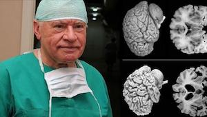 Neurochirurgové bijí na poplach. Toto by měla vědět každá žena!
