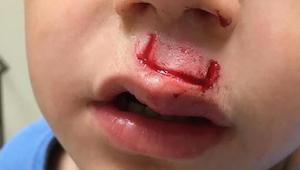 Populární hračka vybouchla jeho synovi přímo do obličeje - teď otec varuje další