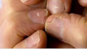 Pokud máte na nehtech bílé proužky, můžou signalizovat vážnou nemoc!
