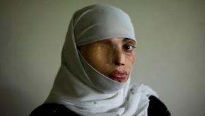 10 krajin, ve kterých ženy nemají žádná práva. To, jak se s nimi zachází, vás šo