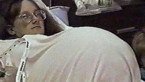 Žena podstoupila hormonální léčbu, aby otěhotněla. Když jí lékař udělal USG, oka
