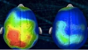 Neurologové navrhnuli píseň, která okamžitě redukuje neklid. Už jste ji slyšeli?