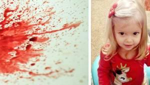 2letá holčička zbledla a začala zvracet krev. Krátce poté zemřela. Rodiče tomu m