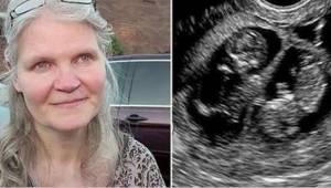 41letá žena čekala trojčata. Při porodu ale lékař odhalil ještě jedno překvapení