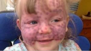 Když ji uviděl lékař, myslel, že má na obličeji atypické modřiny. Bylo to ale ně