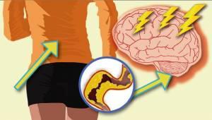 Všechno, co musíte vědět o cévní mozkové příhodě u žen.
