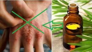 Tento olej dokáže zázraky. 7 využití, o kterých jste pravděpodobně netušili.
